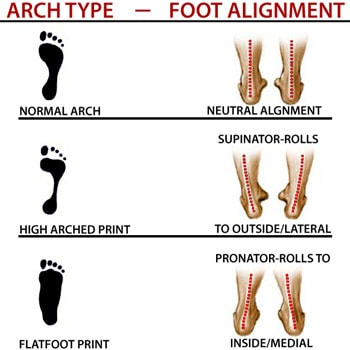 high-foot-arch