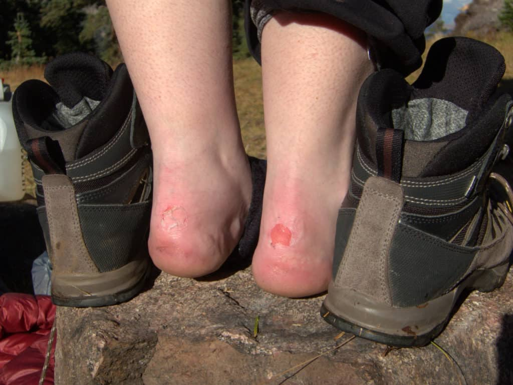 How to prevent blisters from steel toe boots