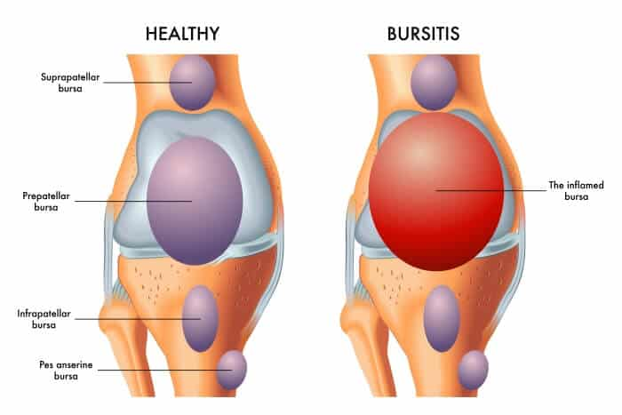 bursitis knees