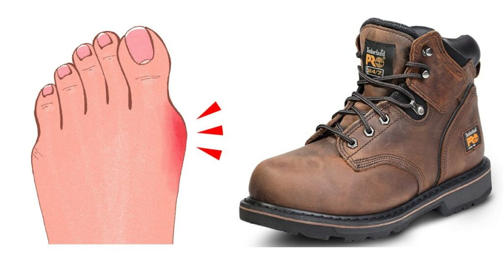 Can Bunions be Caused by Steel Toe Boots