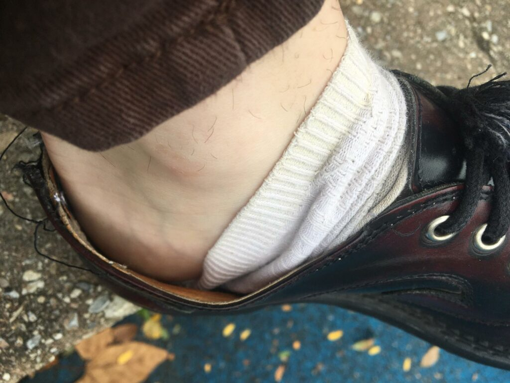How_do_you_keep_your_socks_from_slipping_off_your_heel