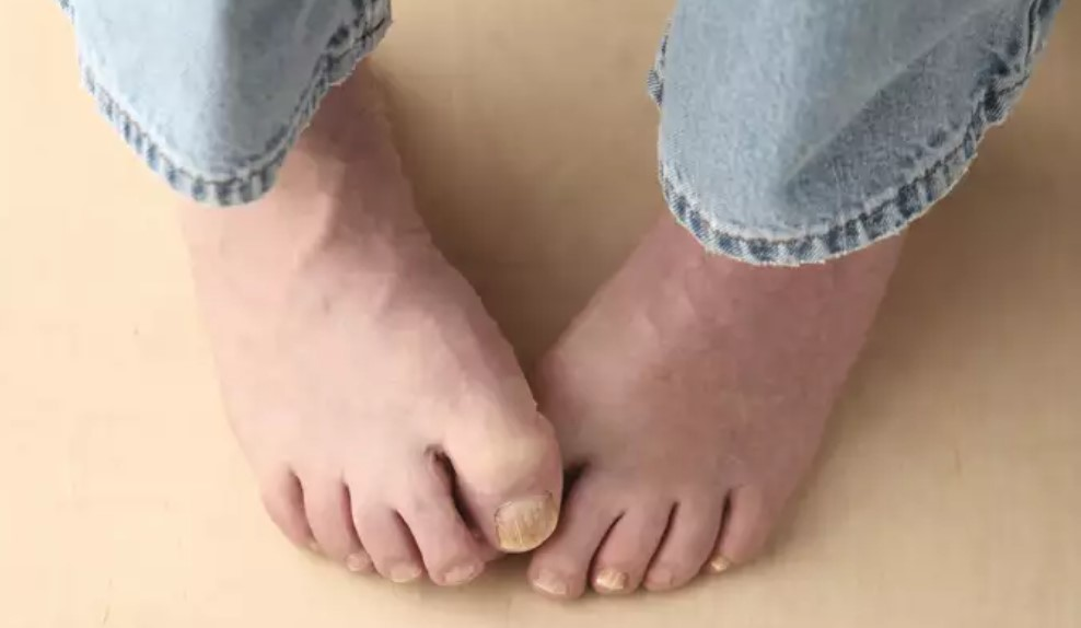What Socks are Best for Toenail Fungus
